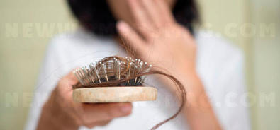 How much hair loss is still normal?
