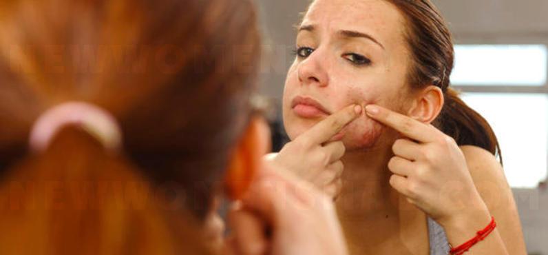 Dermatillomania – The addiction to express pimples
